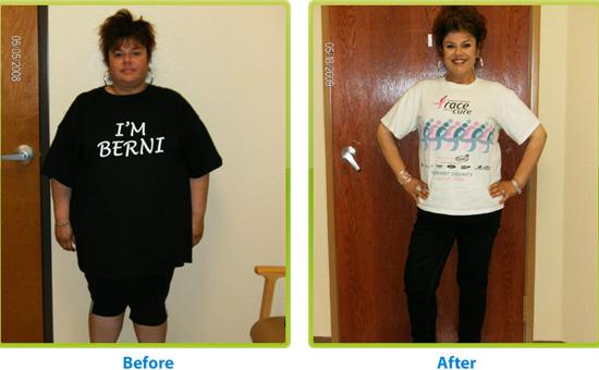 """이런 느낌이라고나 할까... """"Before and after weight loss surgery"""", jackiebese (CC BY-SA)"""